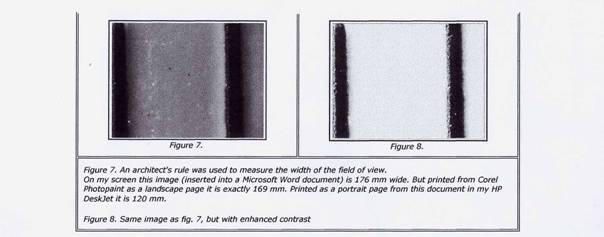 grossissement microscope calcul